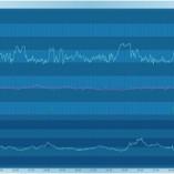 CTG-Trace Sense4Baby